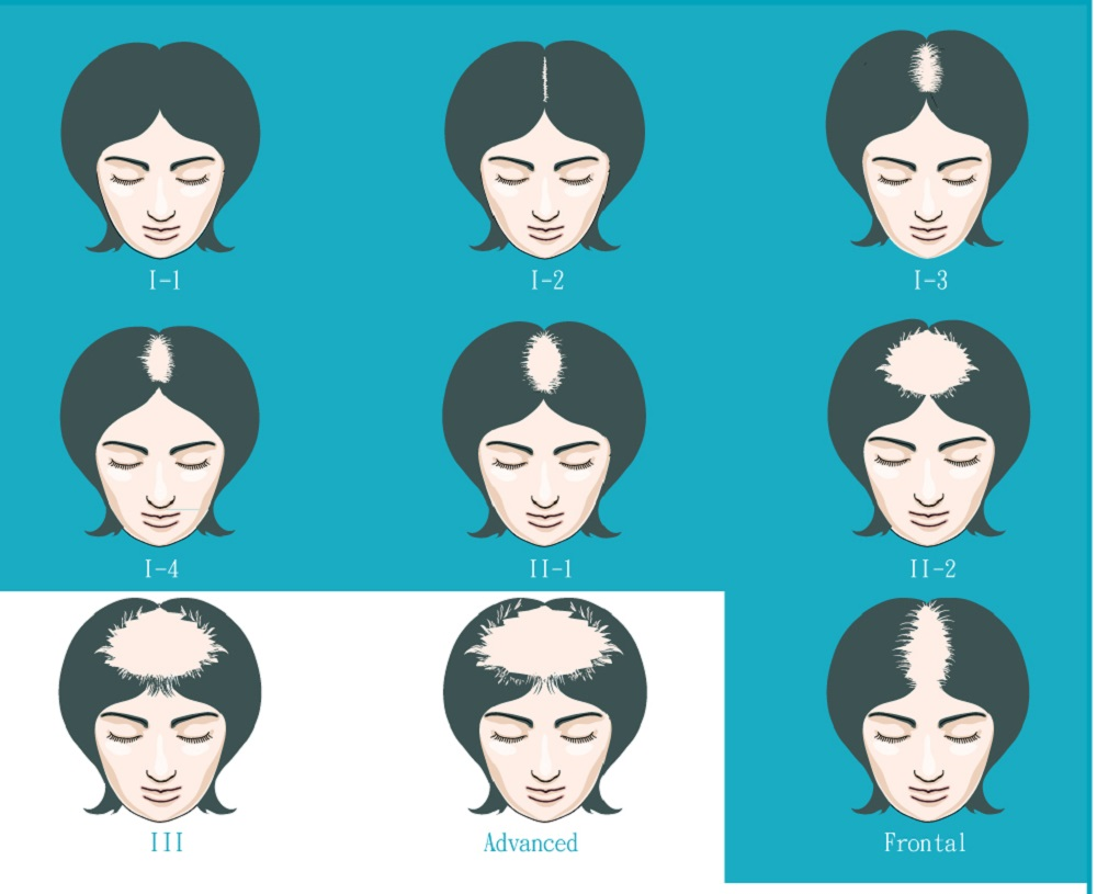 Female Pattern Baldness Treatment LLLT